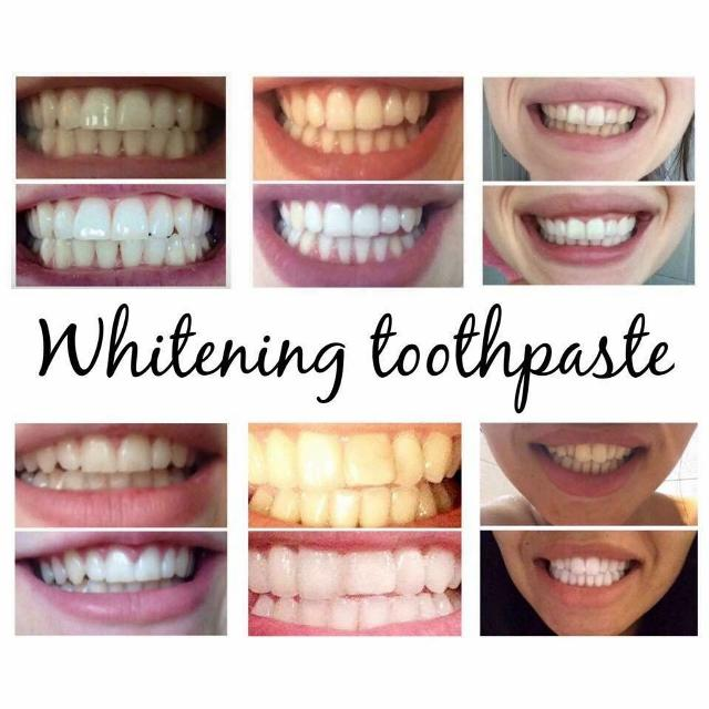Best Whitening Toothpaste >> Best Selling Whitening Toothpaste In Oshawa Ontario For 2019