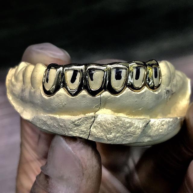 Custom Gold Grillz 10k 14k 18k