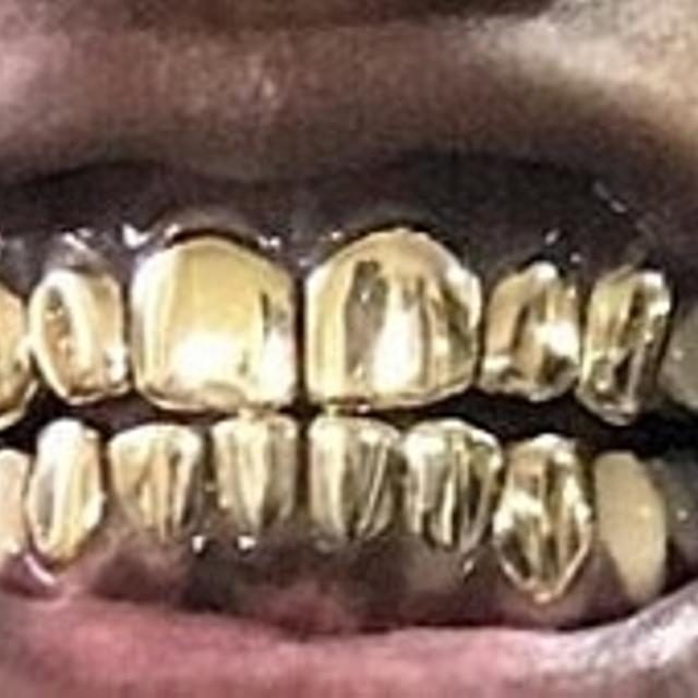 GOLD GRILLZ FOR SALE